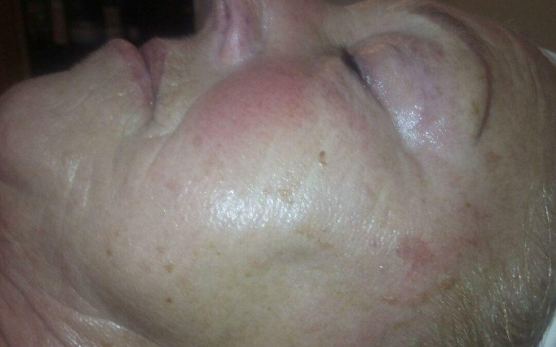 Rosaceára és kipirosodásra hajlamos, érett bőr kezelése